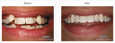 cosmetic braces leicester