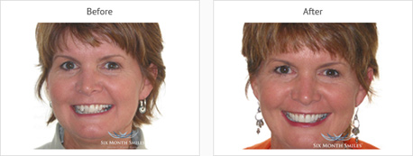 six month smile brace before picture