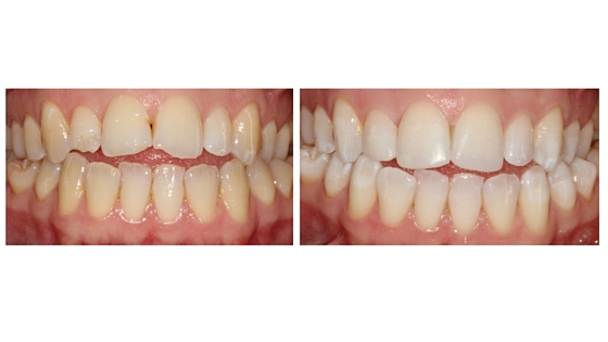 Teeth whitening and composite build ups